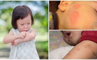 Piqûres de moustiques sur la peau d'un adulte ou d'un enfant