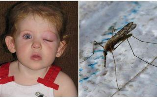 Que faire si un enfant a les yeux gonflés après une piqûre de moustique