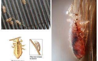 Période d'incubation des poux et des lentes chez l'homme