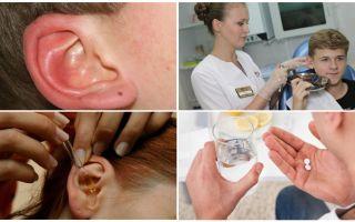 Tique dans l'oreille d'une personne: symptômes et traitement