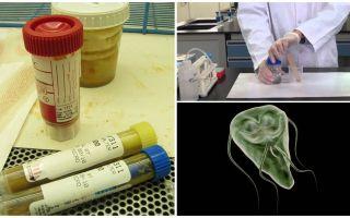Comment passer correctement les matières fécales sur Giardia, méthodes d'analyse