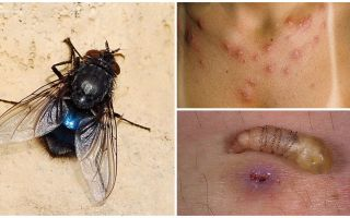 Une mouche qui pond des larves sous la peau humaine