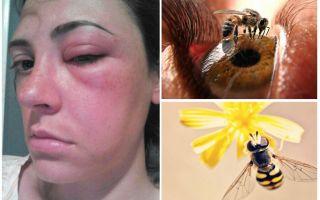 Et si une abeille mordait dans l'oeil et qu'elle gonflait