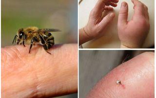 Quelle est la piqûre d'abeille utile pour une personne?