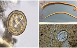 Le schéma du cycle de vie du développement du ver rond humain
