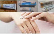 Comment et quoi se débarrasser des piqûres de moustiques à la maison