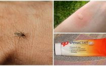 Comment et comment enlever la démangeaison des piqûres de moustiques chez un enfant et un adulte