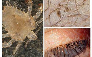 Symptômes et traitement des poux du pubis