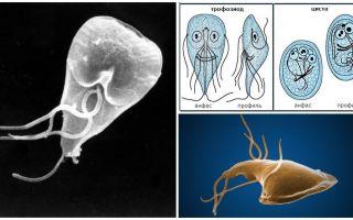 Maladie des gencives chez l'adulte - symptômes et traitement