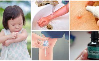 Comment et quoi traiter les piqûres de moustiques chez un enfant