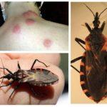 Piqûres d'insectes triatom
