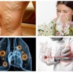 Allergie, maladie cardiaque, tuberculose
