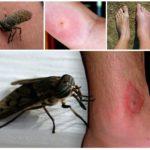 Morsure d'insecte sur le corps humain