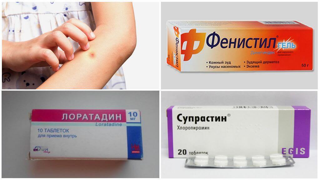 Médicaments contre l'allergie aux piqûres de moustiques