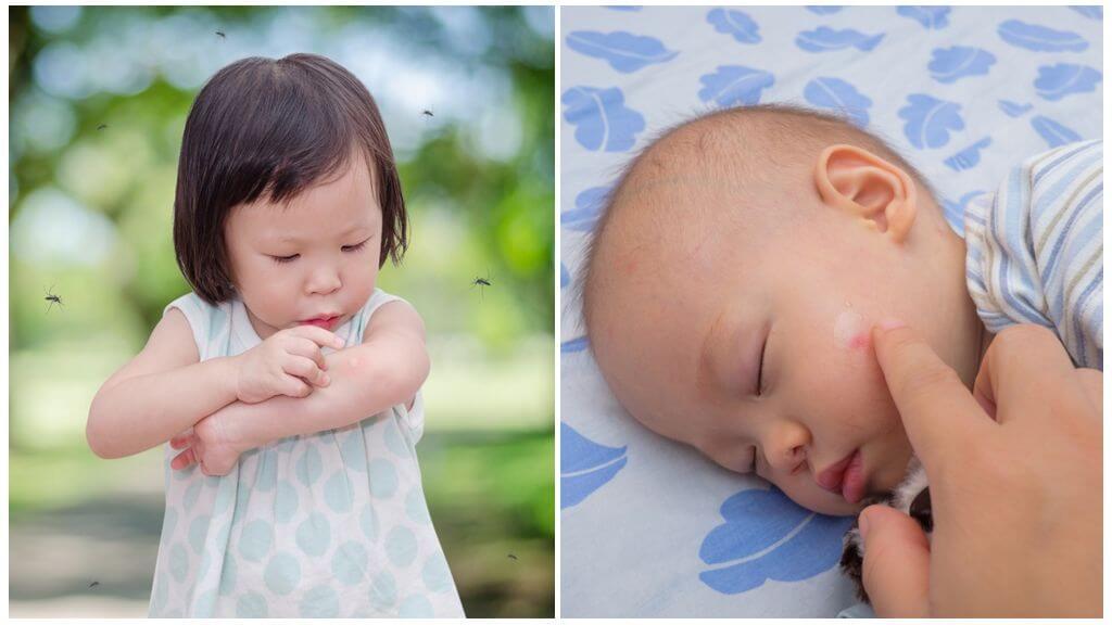 Les piqûres de moustiques chez les enfants