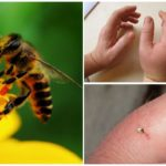 Piqûre d'abeille