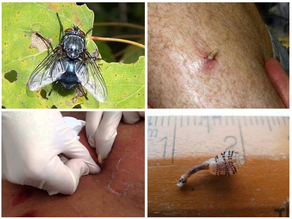 Enlèvement des larves de moucherons