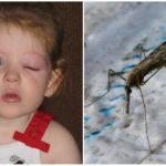 Les yeux gonflés d'un enfant d'une piqûre de moustique