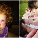 Complications après une piqûre de moustique