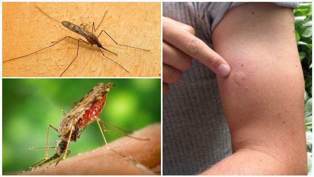 Piqûre de moustique