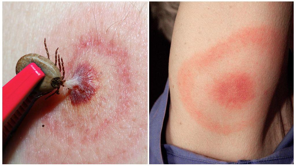 La maladie de Lyme ou la borréliose à tiques