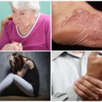 Symptômes du stade chronique de la borréliose