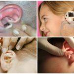 Enlever la mouche de l'oreille
