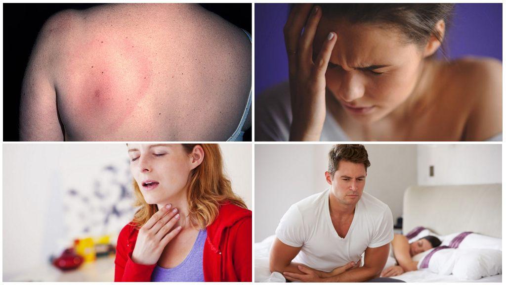 Symptômes de Borréliose