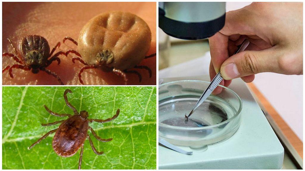 Analyse de l'encéphalite et d'autres maladies