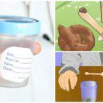 Analyse des fèces pour le ver rond