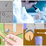 Analyse des matières fécales sur Giardia