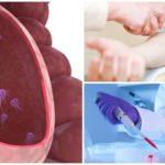 Test sanguin pour Giardia